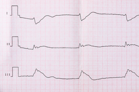 myocardial: Emergency Cardiology. Tape ECG after clinical death and successful resuscitation. Acute period of macrofocal myocardial infarction