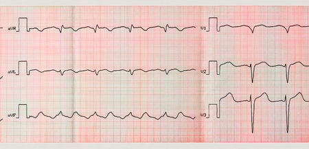 palpitations: Emergency Cardiology. Tape ECG with paroxysm of atrial flutter and restoration sinus rhythm with medication