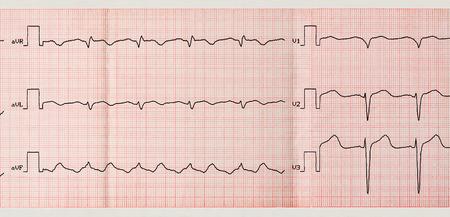 palpitations: Emergency Cardiology. Tape ECG with paroxysm of atrial flutter and restoration sinus rhythm with medication