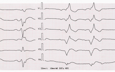 infarction: Emergency Cardiology. Tape ECG with acute period of macrofocal anterior myocardial infarction Stock Photo