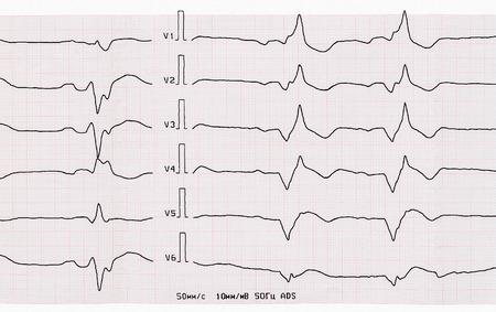 myocardial: Emergency Cardiology. Tape ECG with acute period of macrofocal anterior myocardial infarction Stock Photo