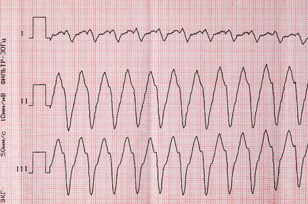 palpitations: Emergency Cardiology. Tape ECG with paroxysm correct form of atrial flutter