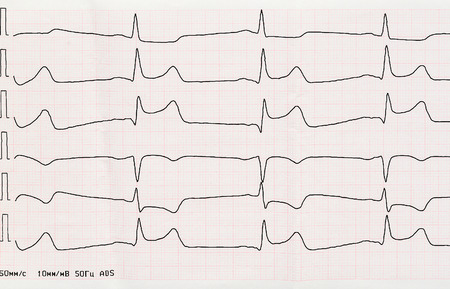 infarction: Emergency Cardiology. ECG with acute period of macrofocal myocardial infarction