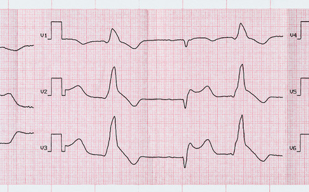 infarction: Emergency Cardiology. Tape ECG with acute period macrofocal widespread anterior myocardial infarction and ventricular premature beats Stock Photo