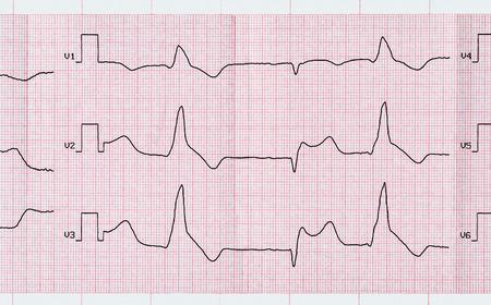 myocardial: Emergency Cardiology. Tape ECG with acute period macrofocal widespread anterior myocardial infarction and ventricular premature beats Stock Photo