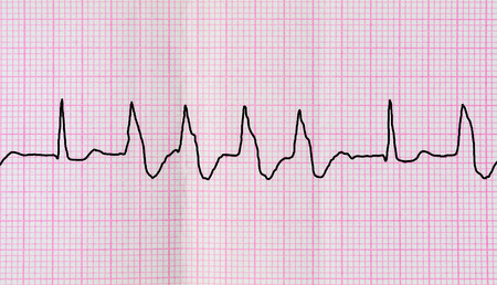 broadened: Emergency Cardiology. Tape ECG with group ventricular extrasystoles