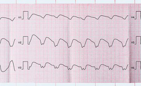 tachycardia: Cardiolog�a de Emergencia y Cuidados Intensivos. ECG cinta con taquicardia ventricular parox�stica