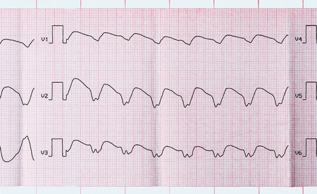 tachycardia: Emergency Cardiology and Intensive Care. Tape ECG with paroxysmal ventricular tachycardia