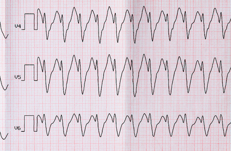 flutter: Emergency Cardiology. ECG with paroxysm correct form of atrial flutter Stock Photo