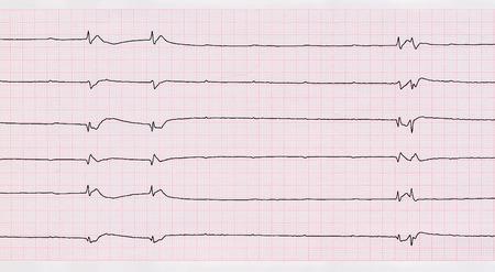 """myocardium: Rianimazione e terapia intensiva. ECG con complessi ventricolari singoli e asistolia ventricolare (""""morire di cuore"""")"""