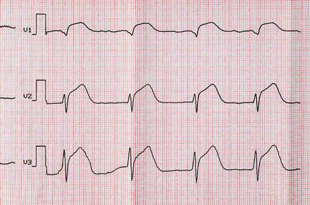 infarction: Emergency Cardiology. ECG with acute period macrofocal widespread anterior myocardial infarction
