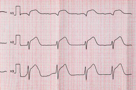 myocardial: Emergency Cardiology. ECG with acute period macrofocal widespread anterior myocardial infarction