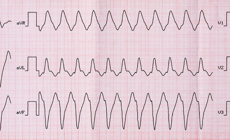 palpitations: Emergency Cardiology. ECG with paroxysm correct form of atrial flutter with atrioventricular conduction 1: 1