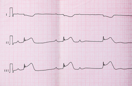 infarction: ECG with acute period of macrofocal myocardial infarction, AV block II degree type Mobitts I and the rhythm of the atrioventricular connection