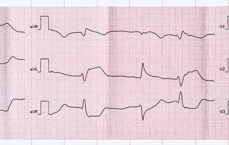 infarction: Emergency Cardiology. ECG with acute period macrofocal widespread anterior myocardial infarction and ventricular premature beats Stock Photo