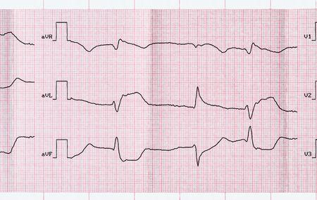 myocardial: Emergency Cardiology. ECG with acute period macrofocal widespread anterior myocardial infarction and ventricular premature beats Stock Photo