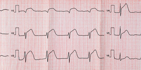 infarction: Emergency cardiology and intensive care. ECG with acute period macrofocal widespread anterior myocardial infarction