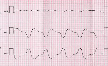 tachycardia: ECG cinta con taquicardia ventricular parox�stica despu�s de la recuperaci�n medicamentosa ineficaces