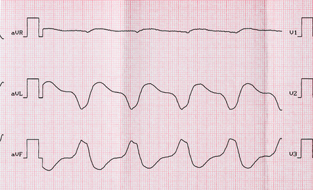 broadened: Tape ECG with paroxysmal ventricular tachycardia after ineffective medicamental recovery Stock Photo