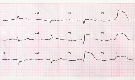 infarction: Emergency cardiology and intensive care. ECG with acute period macrofocal anterior myocardial infarction