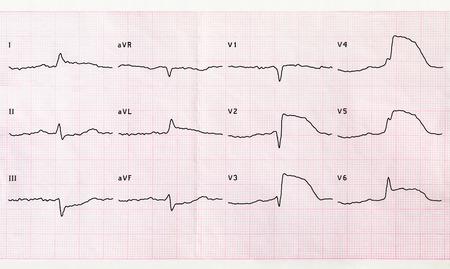 myocardial: Emergency cardiology and intensive care. ECG with acute period macrofocal anterior myocardial infarction