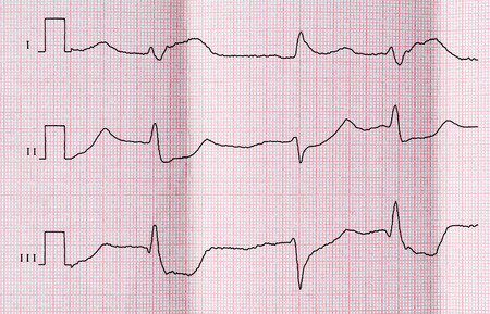 myocardium: ECG con periodo acuto di macrofocal diffusa infarto miocardico anteriore e ventricolare battiti prematuri in derivazioni standard Archivio Fotografico
