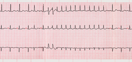 palpitations: Emergency Cardiology. ECG with supraventricular arrhythmias and short paroxysm of atrial fibrillation Stock Photo