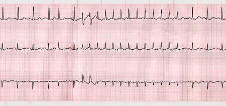 palpitations: Emergency Cardiology. ECG with supraventricular arrhythmias and short paroxysm of atrial fibrillation Stock Photo