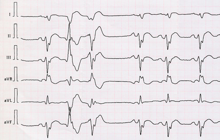 infarction: Tape ECG with acute period macrofocal widespread anterior myocardial infarction and pair ventricular premature beats
