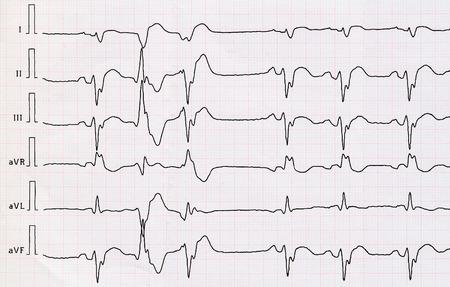 myocardial: Tape ECG with acute period macrofocal widespread anterior myocardial infarction and pair ventricular premature beats