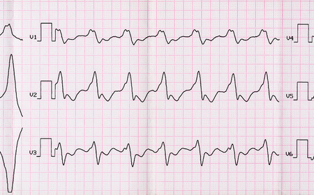 palpitations: Emergency Cardiology. ECG with paroxysm correct form of atrial flutter with atrioventricular conduction 2:1 Stock Photo