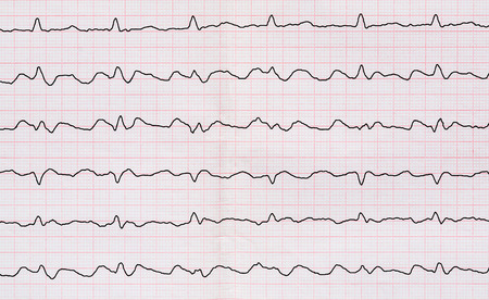 tape line: Emergency Cardiology. ECG with paroxysm correct form of atrial flutter with atrioventricular conduction 2:1 Stock Photo