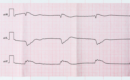 infarction: Tape ECG after clinical death and a successful resuscitation. The acute period of macrofocal  posterior myocardial infarction