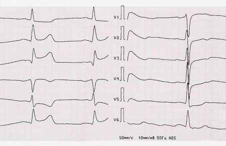 infarction: Emergency Cardiology. ECG with acute period of macrofocal posterior myocardial infarction