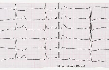 myocardial: Emergency Cardiology. ECG with acute period of macrofocal posterior myocardial infarction