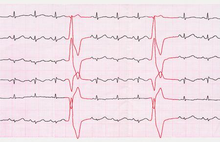 broadened: Emergency Cardiology. Tape ECG with ventricular premature beats (quadrigemini) Stock Photo