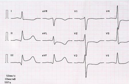 Cardiología de emergencia. ECG con período agudo de infarto de miocardio posterior de gran focal focal