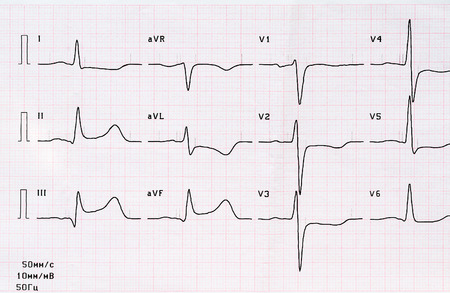 Emergency cardiology. ECG with acute period of large-focal posterior diaphragmatic myocardial infarction 免版税图像