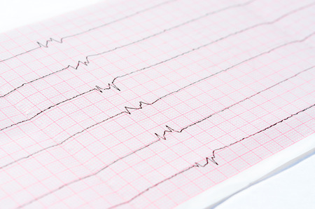 ventricles: Resuscitation and intensive care. ECG with single ventricular complexes and ventricular asystole (dying heart) Stock Photo