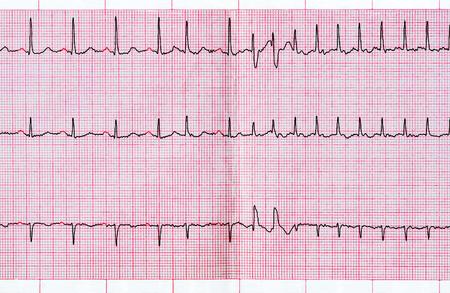 Cardiología de emergencia. ECG con extrasístole supraventricular y paroxismo corto de la fibrilación auricular