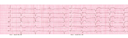 ECG tape with rhythm of artificial pacemaker (ventricular pacing)