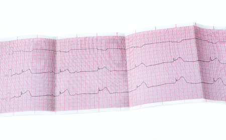 ECG with acute period of macrofocal myocardial infarction, AV block II degree type Mobitts I and rhythm of atrioventricular connection Stock Photo
