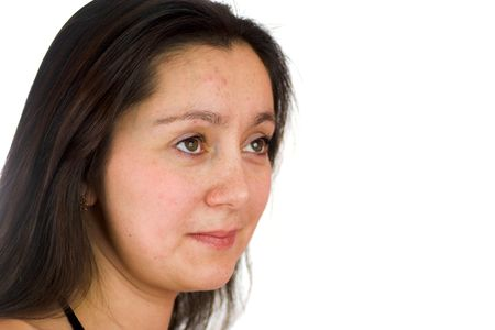 Portrait of upset woman with acne looking away with hope isolated on white Stock Photo - 2036832