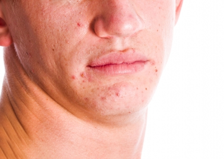 Male ace with acne problem skin isolated on white