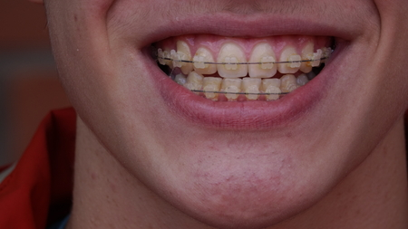 smile close up: A young man with braces