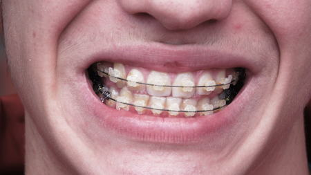 A young man with braces
