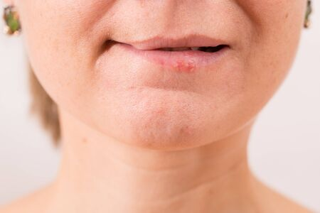 Close-up of female lips suffering from herpes