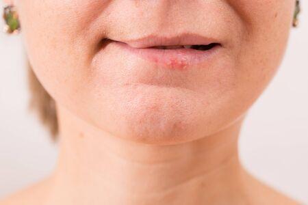 Primer plano de los labios femeninos que sufren de herpes