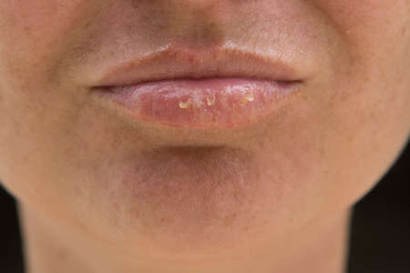 Close-up of female lips suffering from herpes disease Banque d'images