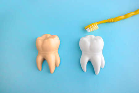 Dental care flat lay with teeth models and teethbrush on blue background. Dentist day concept.